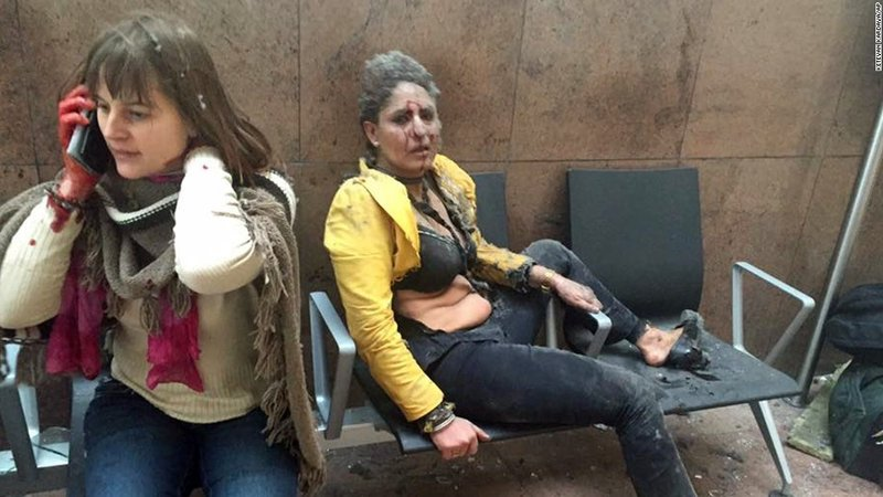 Two wounded women at Brussels airport.